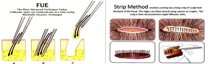 FUE Strip