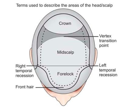 hair-transplant-zones